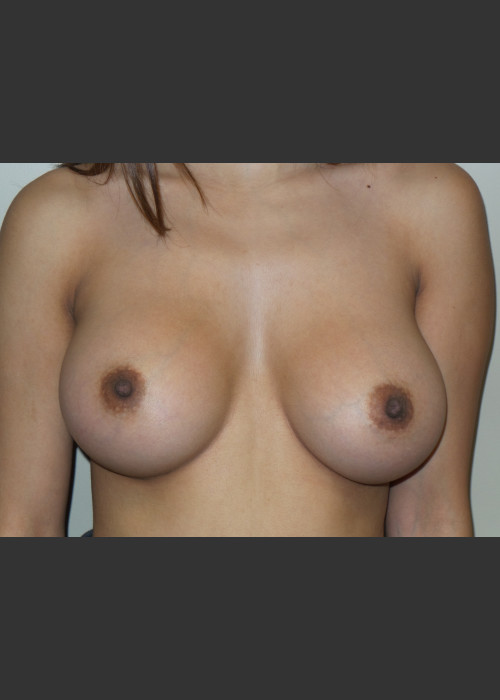 After Photo for Silicone Breast Augmentation - Sanjay Grover MD FACS - ZALEA Featured Before & After