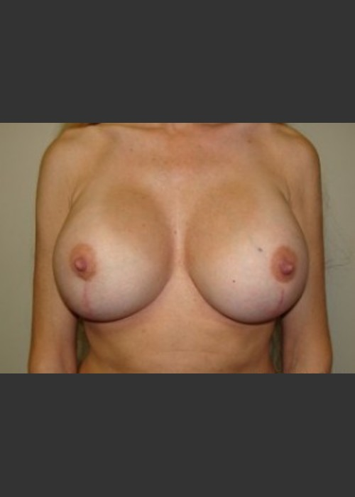 After Photo for Breast Revision 5654 - Sanjay Grover MD FACS  - ZALEA Featured Before & After