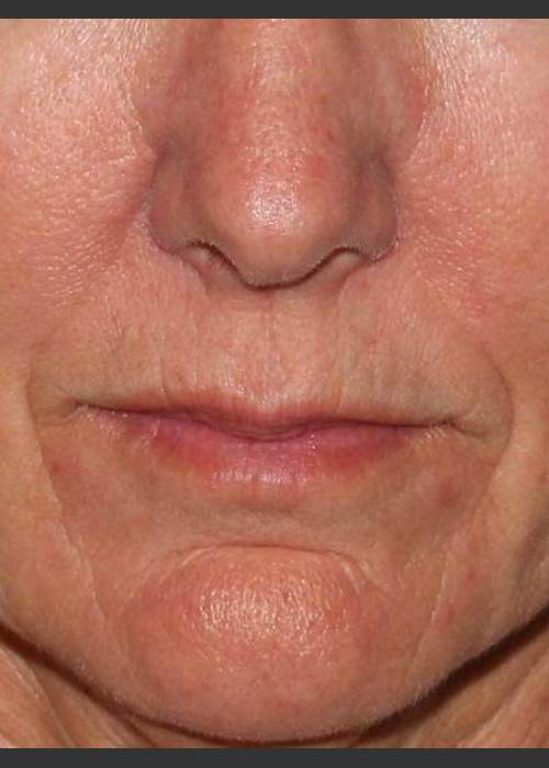 Before Photo for  Reduction of Perioral Lines - Douglas Wu, M.D. - ZALEA Featured Before & After