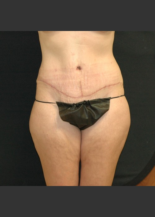 After Photo for Tummy Tuck Case #1 - Gallaher Plastic Surgery & Spa MD - ZALEA Featured Before & After