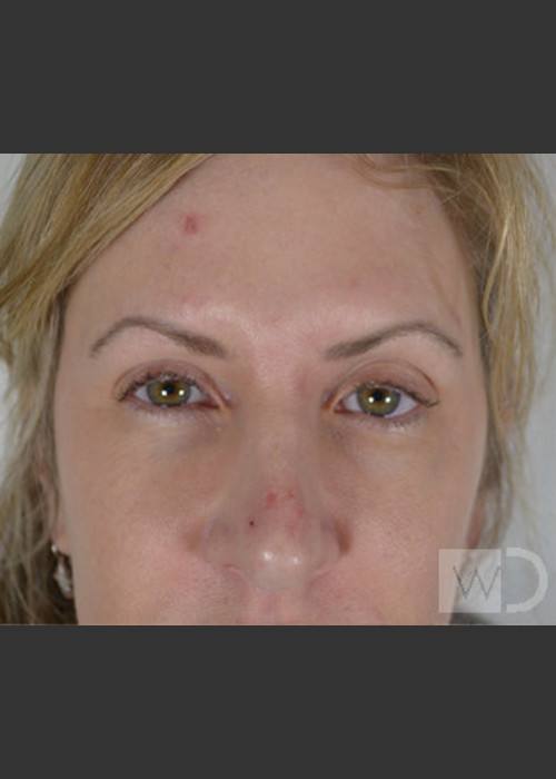 Before Photo for  Upper Blepharoplasty - Chuma Chike-Obi MD - ZALEA Featured Before & After