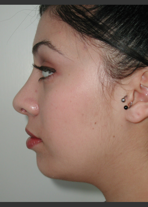 After Photo for Rhinoplasty and Chin Augmentation - James Newman - ZALEA Featured Before & After