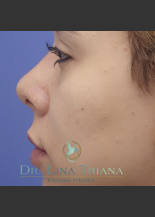 After Photo for Rhinoplasty - Lina Triana, MD - ZALEA Featured Before & After