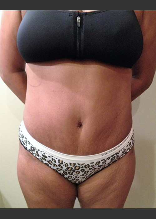 After Photo for Dr. Palmer Tummy Tuck 01  - Shane Palmer - ZALEA Featured Before & After