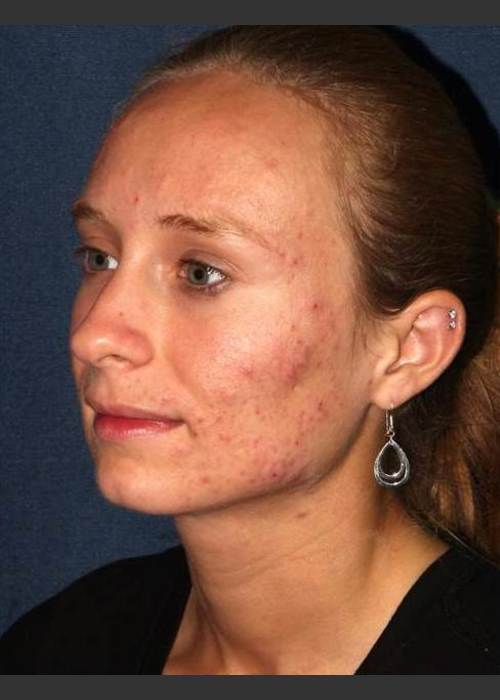 Before Photo for Facial Acne Treatment - Dr. Sabrina G. Fabi - ZALEA Featured Before & After
