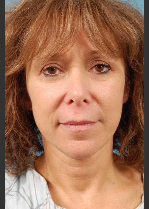 After Photo for Facelift Surgery - Thomas A. Mustoe, MD, FACS - ZALEA Featured Before & After