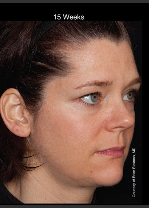 After Photo for Hyperpigmentation - Professional Peel + Homecare - Brian S. Biesman, MD - ZALEA Featured Before & After