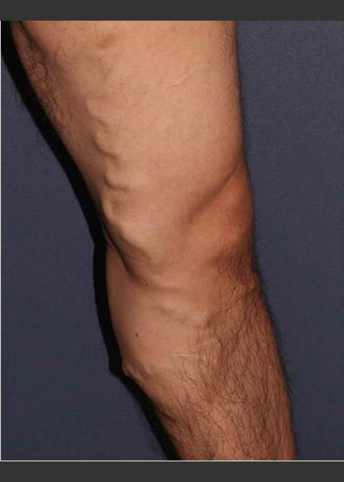Before Photo for Non-surgical Leg Vein Treatment - Mitchel P. Goldman M.D. - ZALEA Featured Before & After