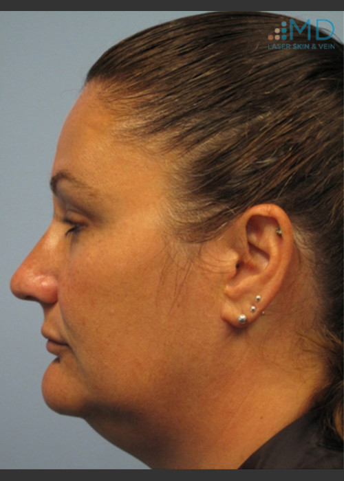 Before Photo for  Exilis Skin Tightening of the Lower Face - Margaret Ann Weiss - ZALEA Featured Before & After