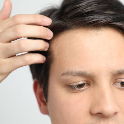What is the Cost of Hair Restoration?