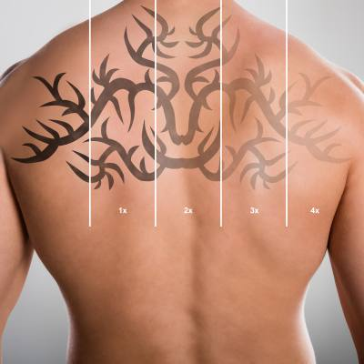 What is the Cost of Laser Tattoo Removal?