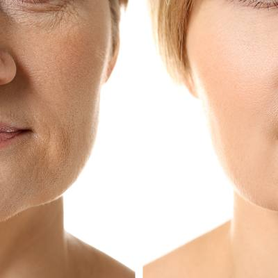 What is the Cost of Wrinkle Reduction Treatments?