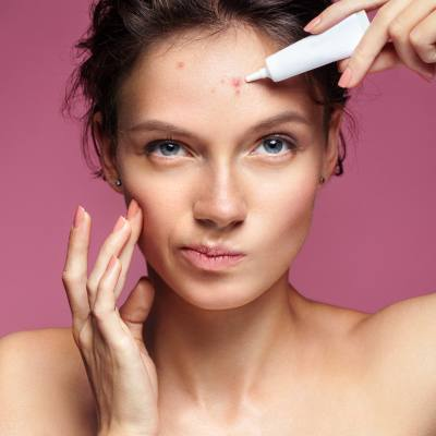 Treating Acne with <b>Laser</b> Technology