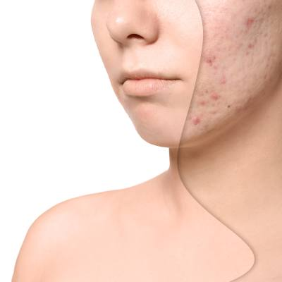The Best Treatment for Acne Scars <b>and</b> Facial Aging