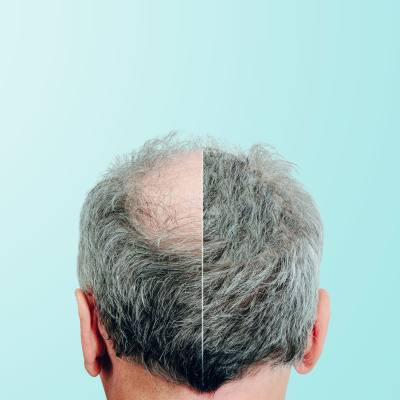 Is Your <b>Hair</b> Thinning?