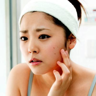 Do You Know The Biggest <b>Acne</b> Risk Factors?