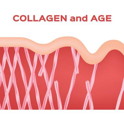 How to Prevent Collagen Loss as You Age