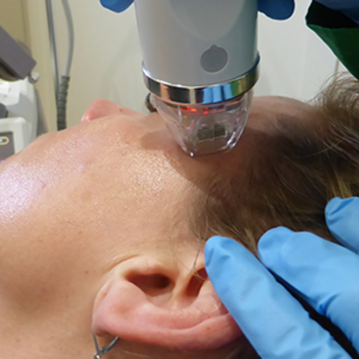 RF Microneedling Procedure: What is Radiofrequency Microneedling?