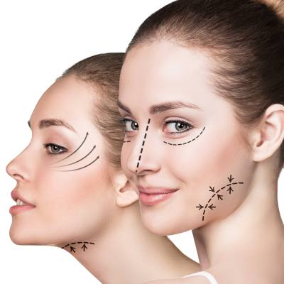 Plastic Surgery Information - What to Know Before Getting Surgery