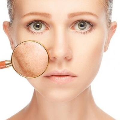 Summer Basics for Melasma