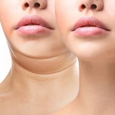 Treat That Double Chin: CoolSculpting - Kybella - SculpSure