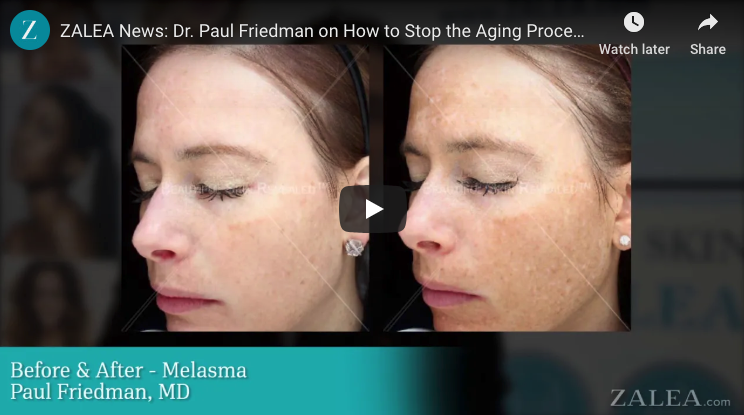 The Trick To Stop Signs Of Aging BEFORE They Start - Prejuvenation Article Banner