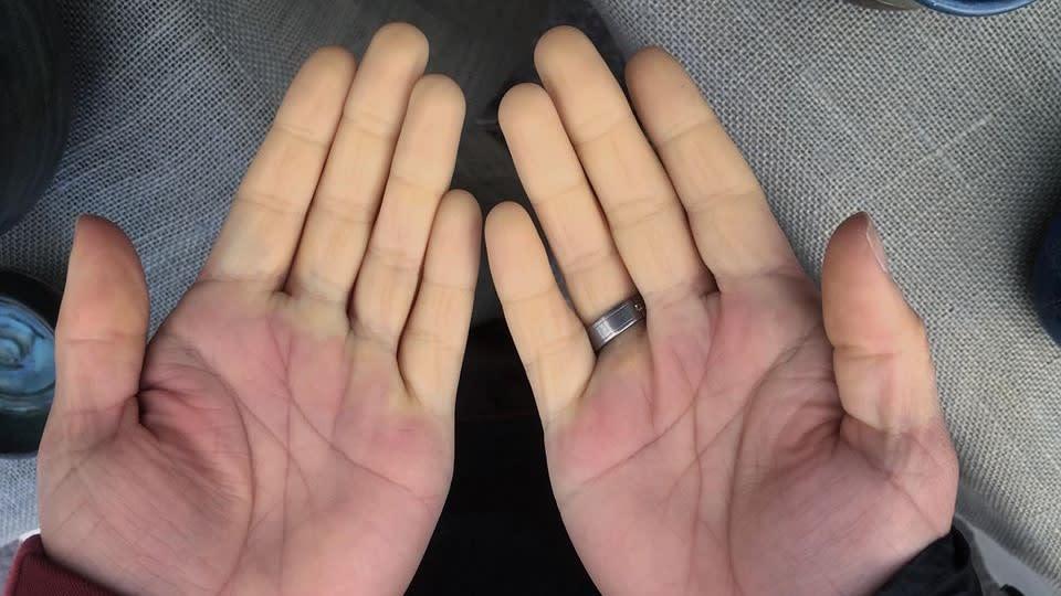 Raynaud Syndrom ZANIER HANDSCHUHE beheizbare Handschuhe Anne Wangler