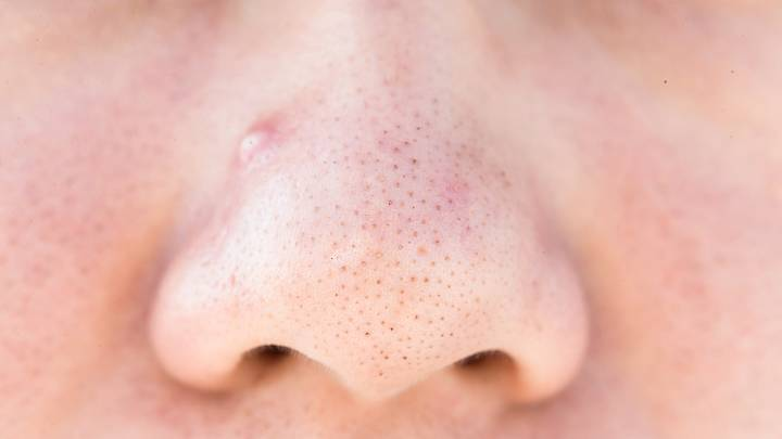 Mitesser Nase Dauerhaft Entfernen