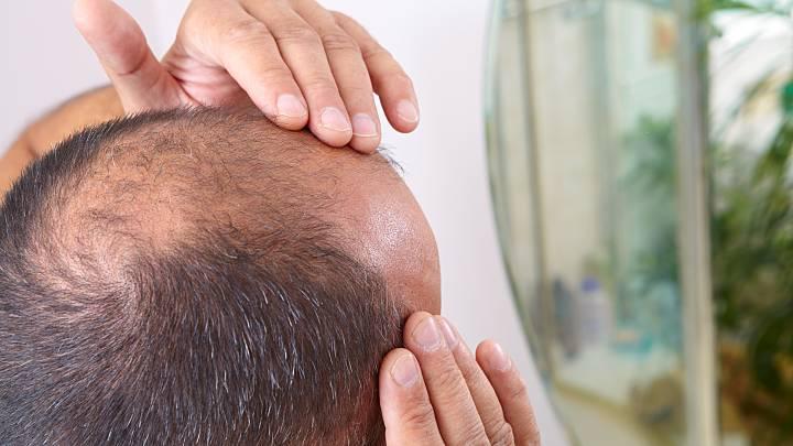 Diffuser Haarausfall Bei Männern Und Frauen Zava Dred