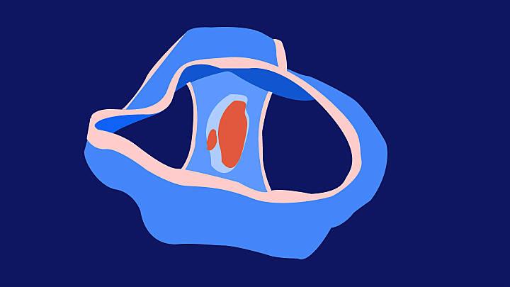 std blutungen vagina