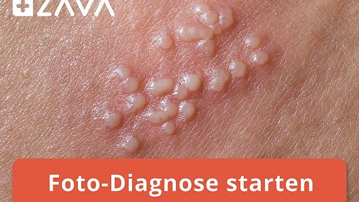 Symptome von Genitalherpes | Zava - DrEd