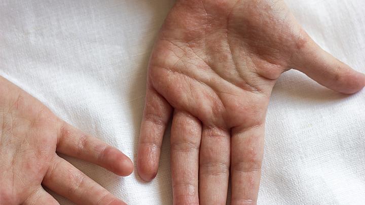 Hände blasen Deutsche Haut