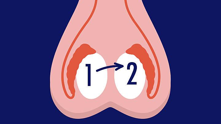 Hodensack knoten im Hodenkrebs: Symptome,