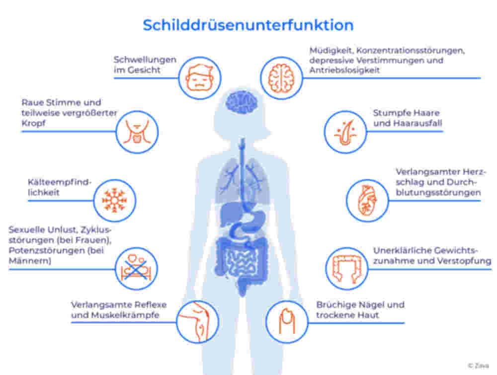 Schilddrüsenunterfunktion: Infografik