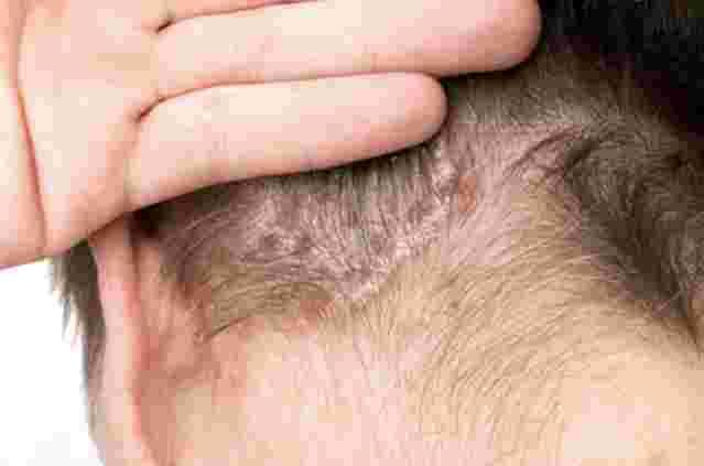 Psoriasis captis: Nahaufnahme eines Hinterkopfes eines Mannes mit schuppiger Kopfhaut.
