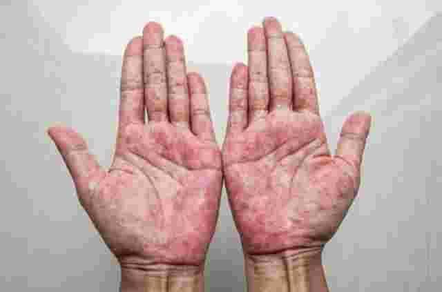 Psoriasis palmoplantaris: Handinnenflächen sind vollständig mit roten Pünktchen überzogen.