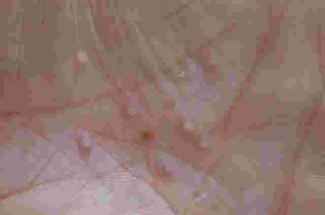 Psoriasis palmoplantaris - pustulöser Typ: Handinnenfläche mit eitrigen Pusteln.