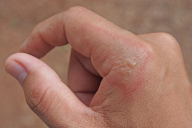 Impetigo contagiosa: Nahaufnahme einer Hand mit Bläschen am Zeigefinger, welche rot umrandet sind.