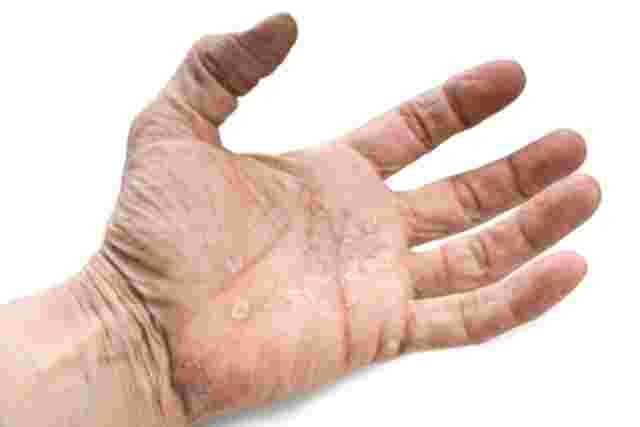 Psoriasis palmoplantaris - keratotischer Typ: Handinnenfläche mit schuppigen, klar umgrenzten Entzündungen.