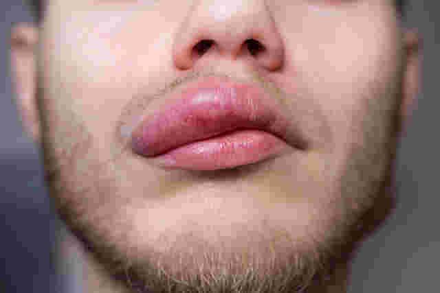 Angioödem: Nahaufnahme einer stark angeschwollenen Lippe eines Mannes.