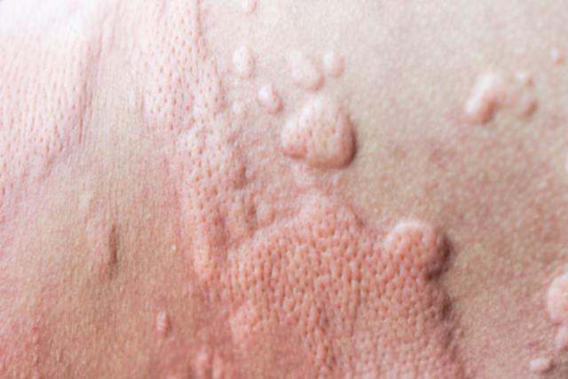 Quaddeln: Nahaufnahme einer geröteten, bereichsweise angeschwollenen Haut.