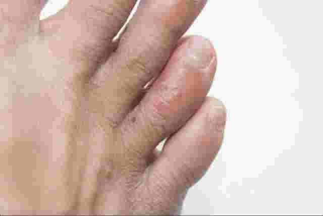 Dyshidrotisches Ekzem Fußzehen