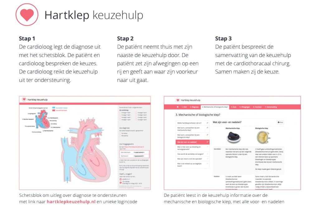 stappenplan-hartklep-keuzehulp-in-praktijk