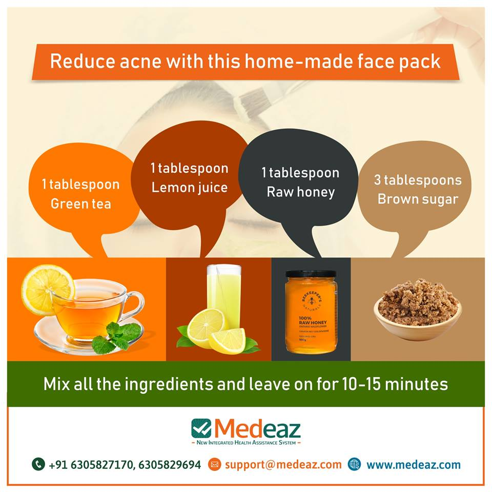 What is the best home remedy for acne?